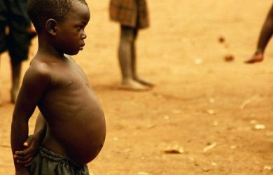 Kwashiorkor causes, symptoms, treatment