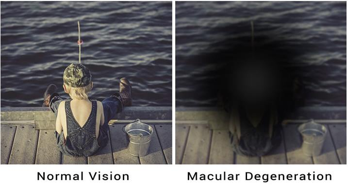 10 Early Macular Degeneration Symptoms And Causes