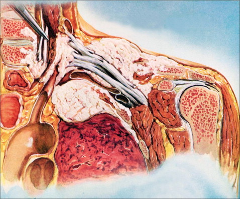 Pancoast tumor (introduction) early symptoms and signs of Pancoast tumor Pancoast tumor life expectancy Pancoast tumor survival rate Pancoast tumor symptoms stories Pancoast tumor histology Pancoast tumor diagnosis Pancoast tumor treatment