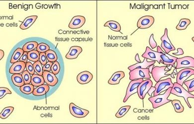 Malignant Neoplasm - Introduction What is it? Causes of malignant neoplasm Symptoms of malignant neoplasm Characteristics of malignant neoplasm Common types of malignant neoplasm Diagnosing neoplasia Stages of malignant neoplasm Malignant neoplasm grading How is grading done? Is neoplasia curable? Neoplasia treatment Are home remedies effective? Neoplasia prognosis Is prevention possible? Important cancer facts FAQs Conclusion