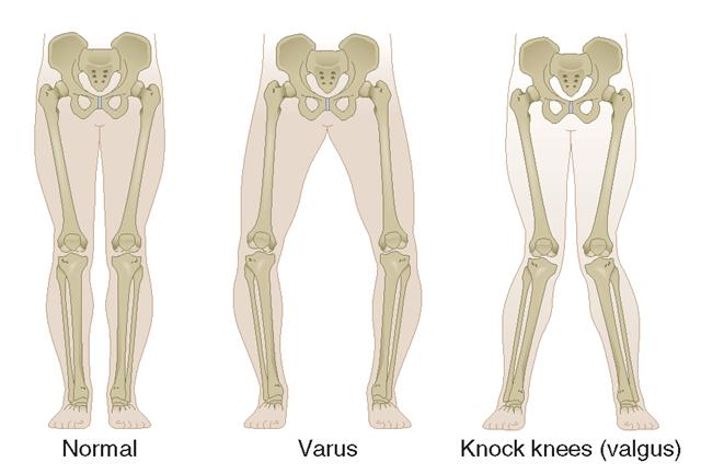 Valgus vs varus, knee, Elbow, Leg varus and valgus mnemonic?