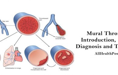 mural thrombus Introduction, Causes, Diagnosis, Treatment, Conclusion