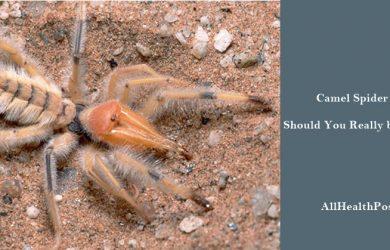 camel spider bite Symptoms, Pictures, Treatment, Diagnosis, Prevention, Conclusion