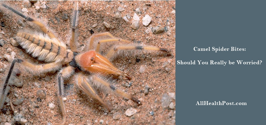 camel spider bite Symptoms, Pictures, Treatment, Diagnosis, Prevention, Conclusion