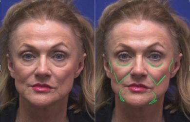 Top 7 most Requested Cosmetic Surgeries - [ Step by Step Guide ]
