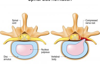 How to Prevent a Herniated Disc - Follow These Steps