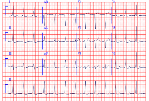 Everything You Need to Know about an Abnormal EKG